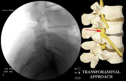 دکتر حسین ارجمند, فلوشیپ درد, تزریق اپیدورال, شیراز, کلینیک درد, دیسک کمر, تنگی کانال نخاعی