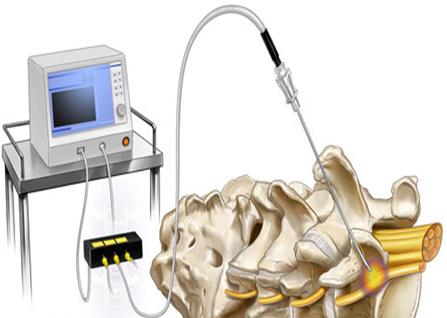 رادیوفرکوئنسی (Radiofrequency neurotomy)
