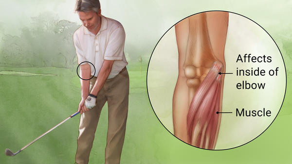 ارنج گلف بازان (Golfers elbow or medial epicondylitis)