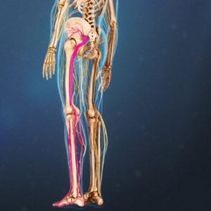 درد سیاتیک (Sciatica)