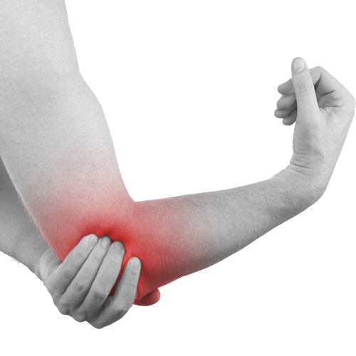 ارنج تنیس بازان (tennis elbow or lateral epicondylitis)