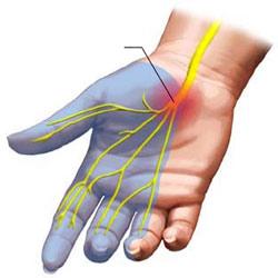 گیرافتادگی عصب مدیان در مچ (carpal tunnel syndrome)