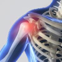 چسبندگی مفصل شانه