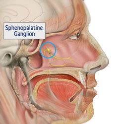 بلاک گانگلیون اسفنوپالاتین (sphenopalatine ganglion block)