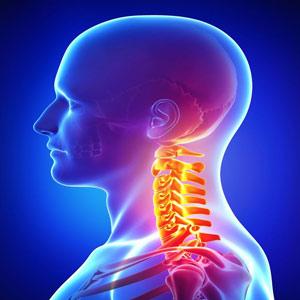ورزشهای گردن درد و دیسک گردن