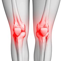 ورزشهای زانو درد و ساییدگی زانو